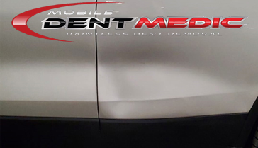 2018_BMW_Large_Damage Our Gallery | Mobile Dent Medic