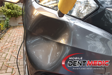 BumperDent3 Mobile Paintless Dent Repair | Dent Removal Toronto | GTA